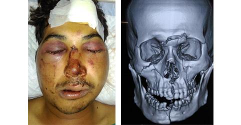 Traumatic facial injuries